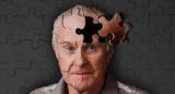 Вчені знайшли спосіб уповільнити старіння мозку